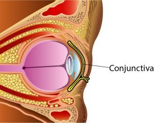 pink eye conjunctivitis School Nurse's Guide to Pink Eye (Conjunctivitis) conjunctiva