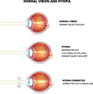 vision screening Vision Screening - The School Nurse Guide myopia