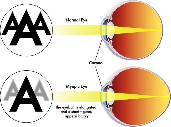 vision screening Vision Screening - The School Nurse Guide myopia2