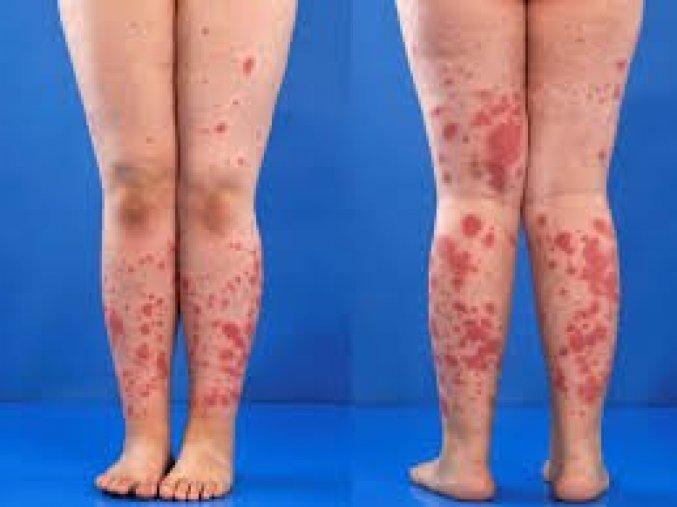 Disease what is hsp Hereditary spastic
